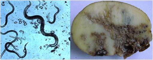 паразиты живущие в кишечнике человека фото